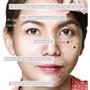 Tratamiento Facial Quita Manchas Acne Sol Paño Hormonales