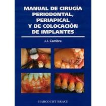 Manual De Cirugia Periodontal, Colocacion De Implantes -pdf