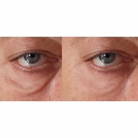 Como arreglar las arrugas en la cara por medio de los ejercicios