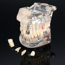 Modelo Dental Protesis Y Patologias, Envio Gratis.