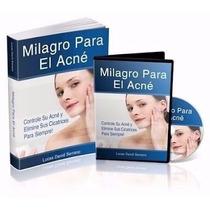 Milagro Para El Acne, Elimine Cicatrices Libro Guia + Bonos