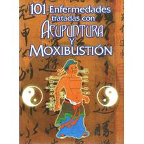 Libro:101 Enfermedades Tratadas Con Acupuntura Y Moxibustión