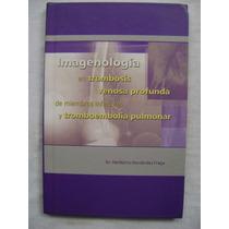Imagenología En Trombosis Venosa Profunda... - H. Hernández