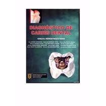 Libro: Diagnóstico De Caries Dental Pdf