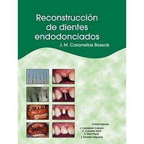 Libro Reconstruccion De Dientes Endodonciados