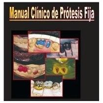 Libro Clínico De Prótesis Fija - Nuevo