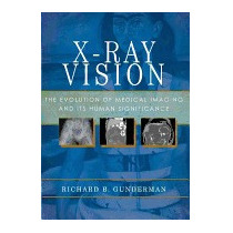 X-ray Vision: The Evolution Of Medical, Richard B Gunderman