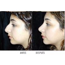 10 Corrector Nasal Rulav Respingador Invisible Haz Negocio