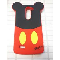 Protector De Goma 3d Lg L80 Bello Mickey Mouse