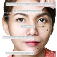 Tratamiento Facial Todo Tipo Manchas Acne Sol Paño Hormonal