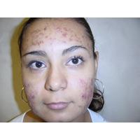 Tratamiento Natural Acne,manchas,psoreasis,vitiligo Manchas
