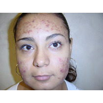 Tratamiento Natural Acne,manchas,psoreasis,vitiligo