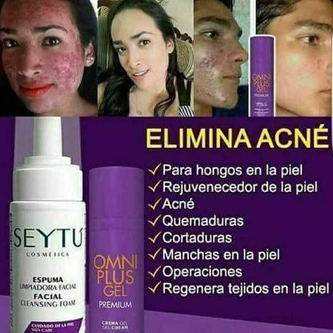 Paquete Control De Acné, Anti-acné Manchas Omnilife Seytú